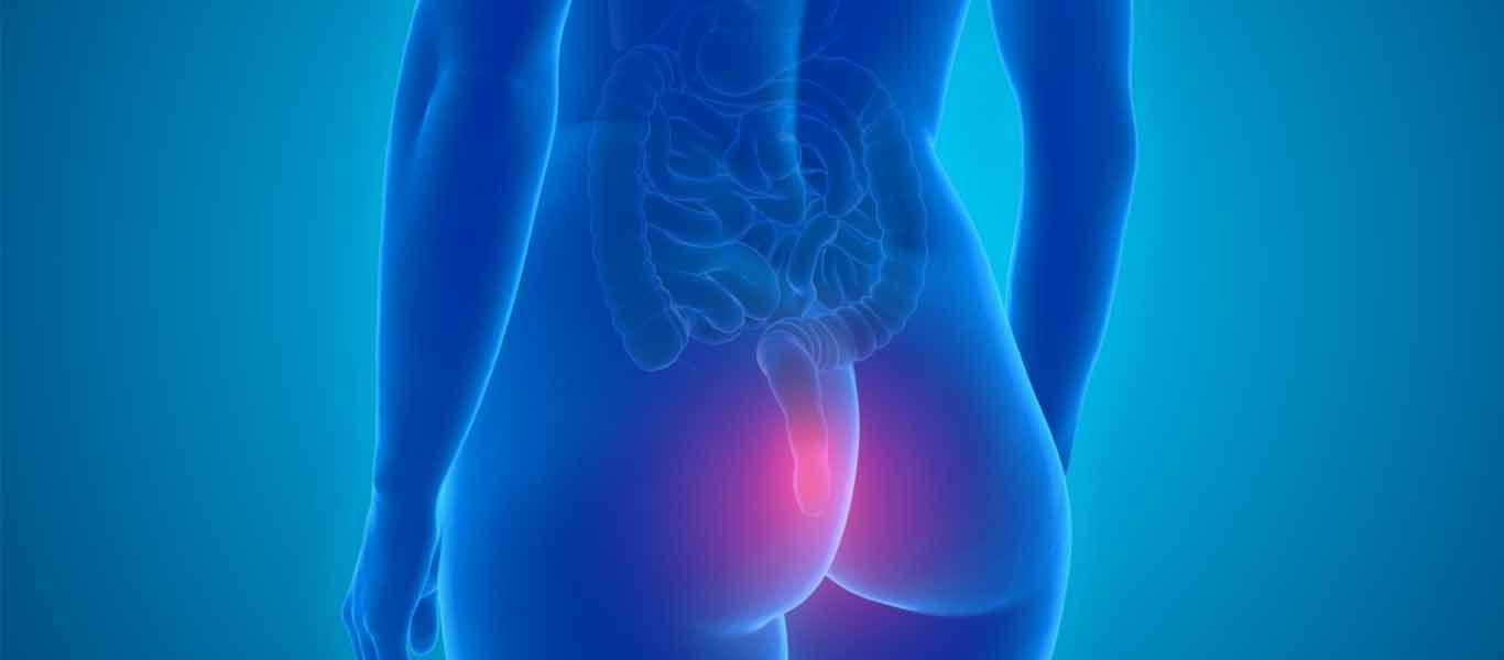 αιμορροΐδες - αιμορροϊδοπάθεια τι είναι - αίτια - συμπτώματα - διάγνωση - πόνος - θεραπεία - αντιμετώπιση - αποκατάσταση laser